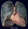 smokers-lung-22312.jpg 10.19 KB